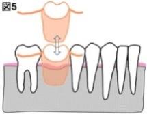 インプラントと義歯の違い